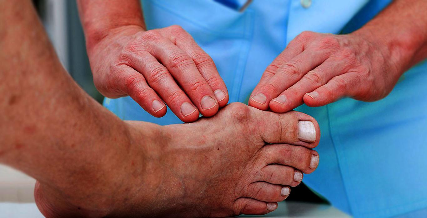 Toe Deformities - Footpro Solutions