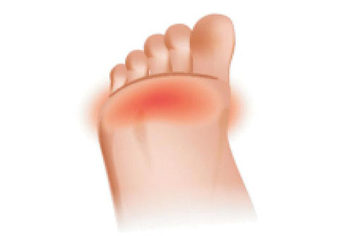 Fore foot Pain